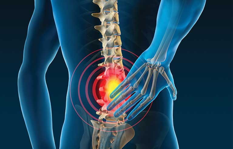 Myths may worsen low back pain and promote ineffective treatments