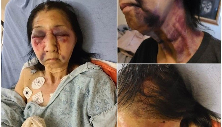 70-Year-Old Mexican Woman Badly Beaten on LA Bus by Black Woman Who Thought She Was Asian